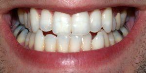 At skære tænder er en dårlig vane
