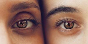 Øjenlågsoperation af Bonnie Erichsen